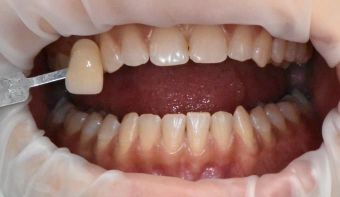 Dantų balinimas prieš ir po galerija 3 1