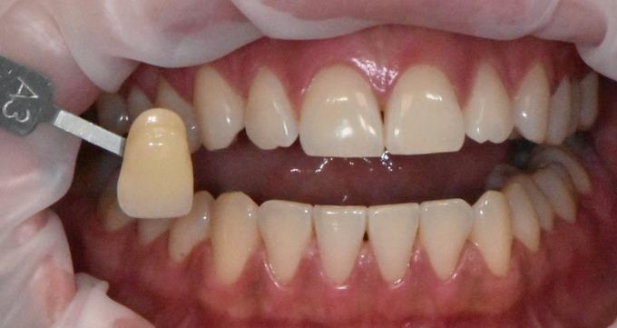 Dantų balinimas prieš ir po foto 5 1