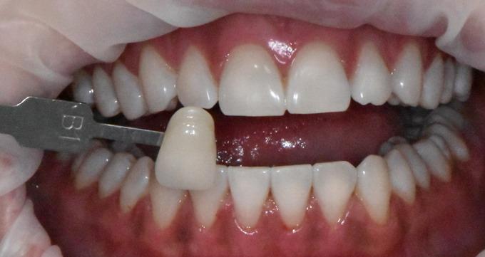 Dantų balinimas prieš ir po foto 5 2