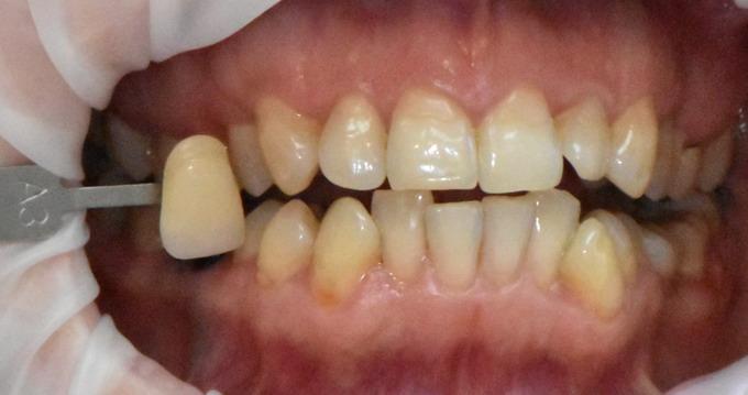 Dantų balinimas prieš ir po 6 1