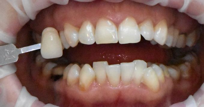 Dantų balinimas prieš ir po 6 2