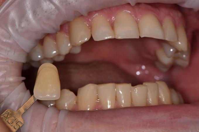 Dantų balinimas 09 1