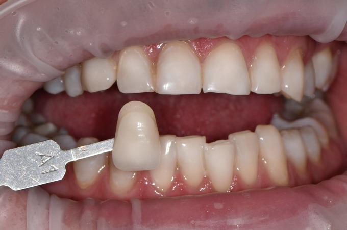Dantų balinimas 09 2