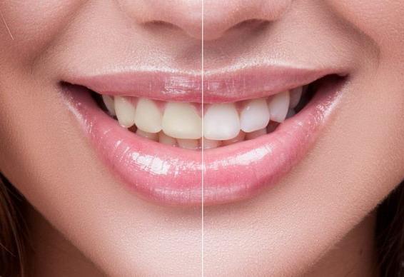 Dantų balinimas prieš ir po
