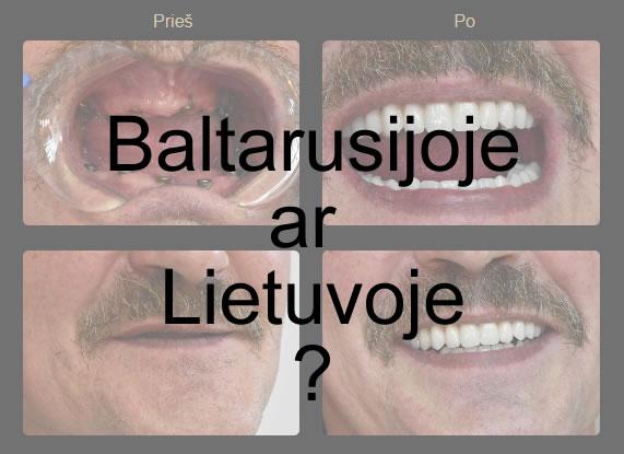 Implantavimas Baltarusijoje