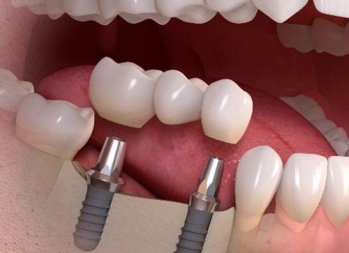 Implantų garantija