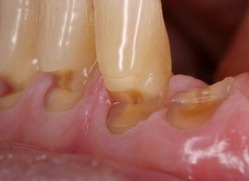 Pažeisti dantys