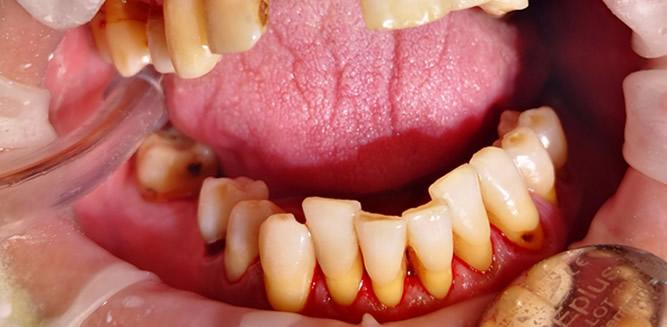 Profesionali burnos higiena galerija prieš ir po 2 2