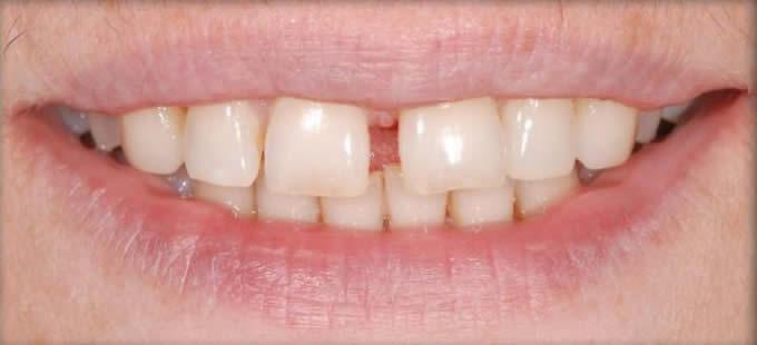 Ortodontinis gydymas 1 1