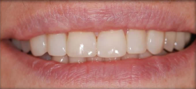Ortodontinis gydymas 1 2