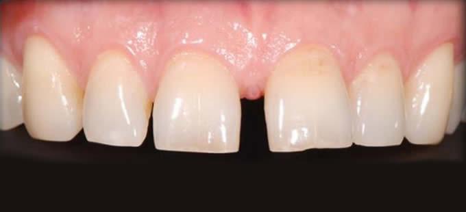 Ortodontinis gydymas 1 3