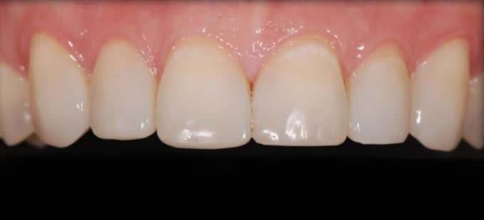Ortodontinis gydymas 1 4