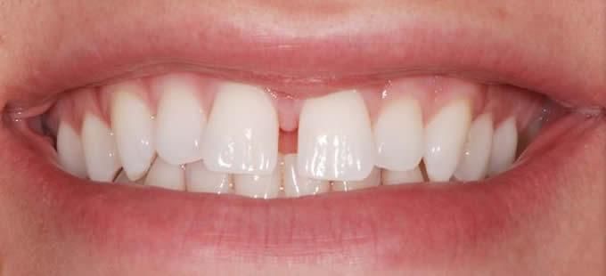 Ortodontija 2 1