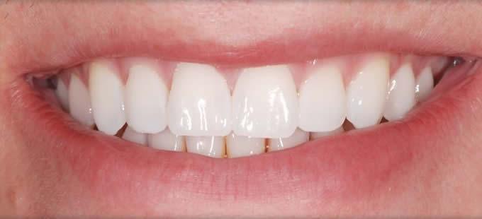 Ortodontija 2 2