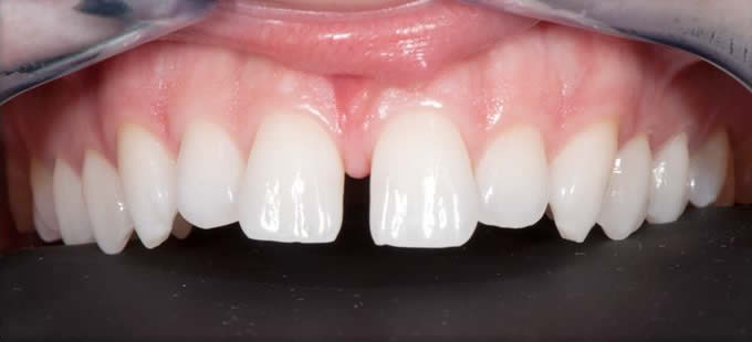 Ortodontija 2 3