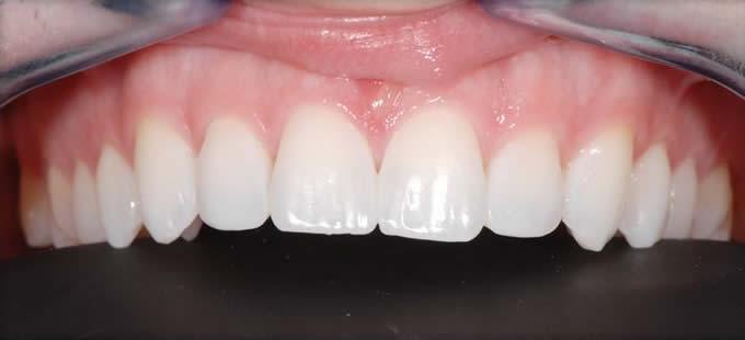 Ortodontija 2 4