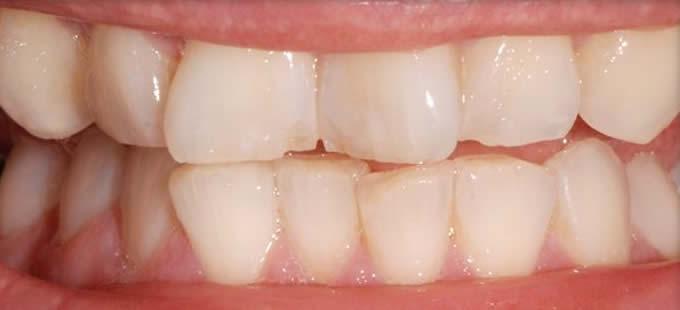 Ortodontinis gydymas 3 1