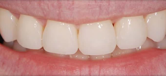 Ortodontinis gydymas 3 2