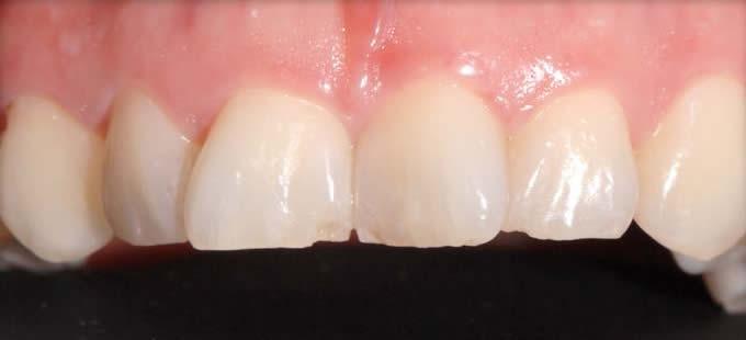 Ortodontinis gydymas 3 3