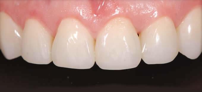 Ortodontinis gydymas 3 4
