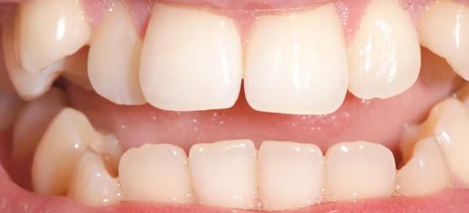 Ortodontinis gydymas 4 1