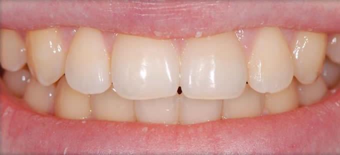 Ortodontinis gydymas 4 2