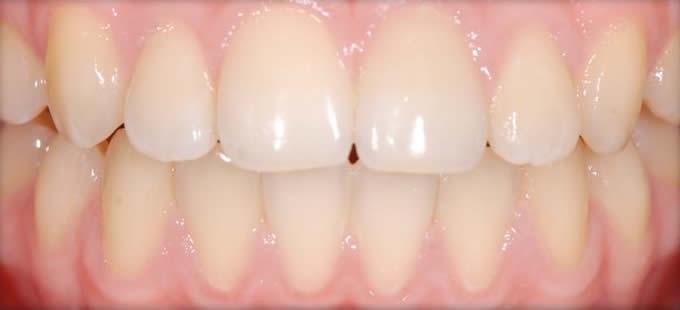 Ortodontinis gydymas 4 4