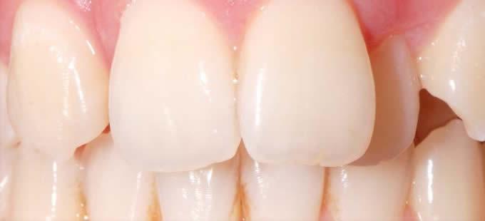 Ortodontija 6 1