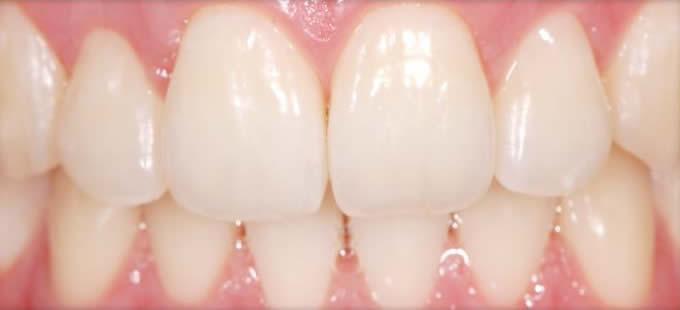Ortodontija 6 2