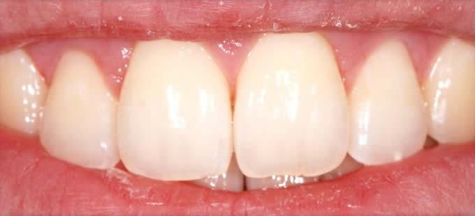 Ortodontija 6 4