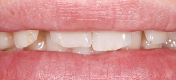 Ortodontinis gydymas 7 1