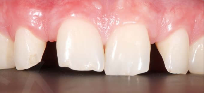 Ortodontinis gydymas 7 2