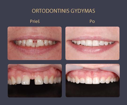 ortodontinis gydymas prieš ir po galerija