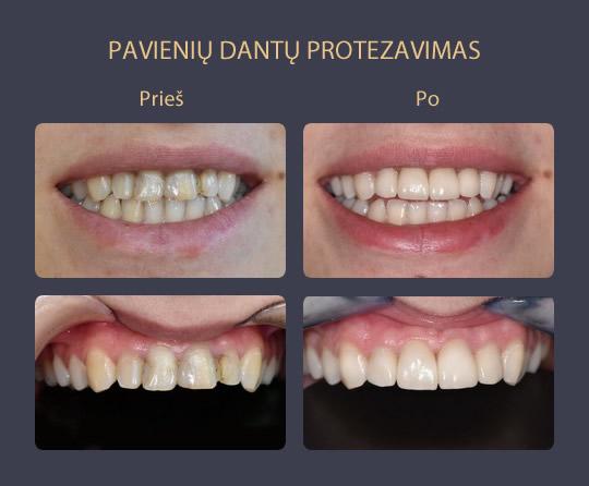 Pavienių dantų protezavimas prieš ir po galerija