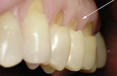 Dantų pažeidimų gydymas