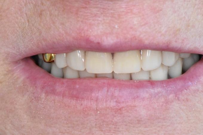 Dantų protezavimas 12 2