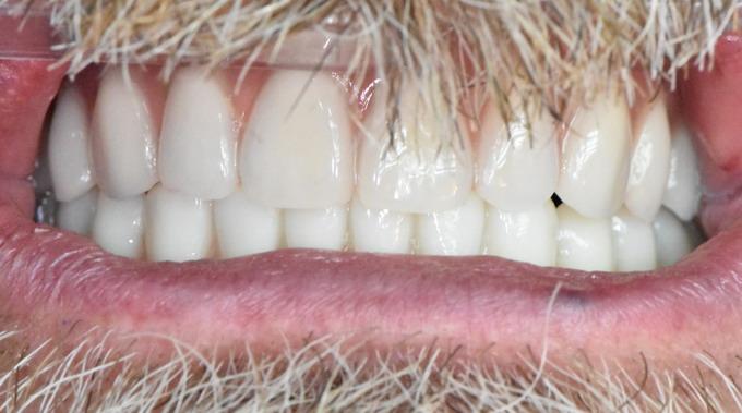 Dantų implantavimas 13 2