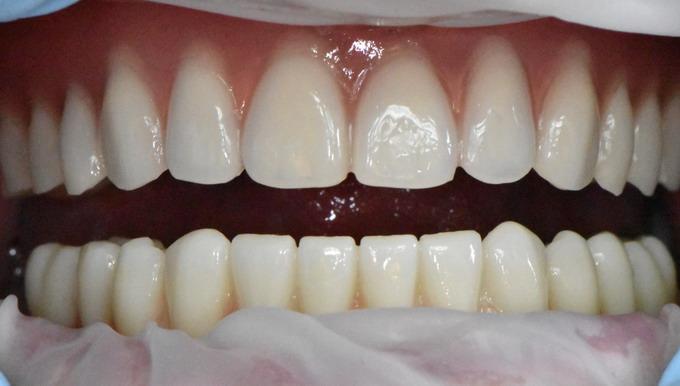 Dantų implantavimas 13 4