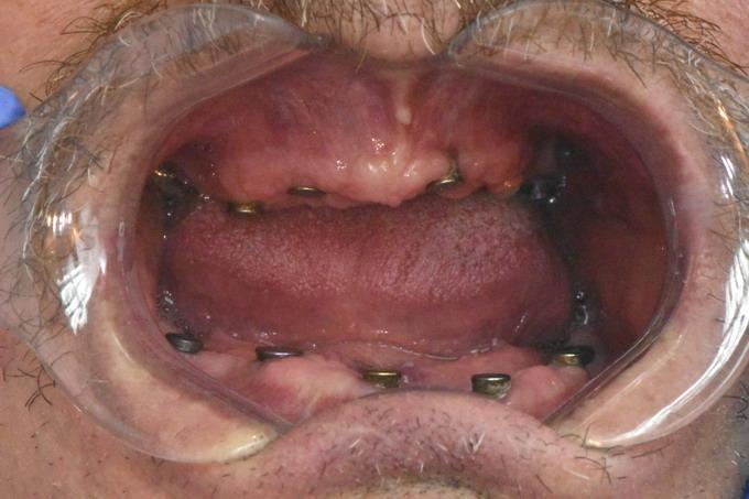 Dantų atstatymas implantais prieš ir po 16 1