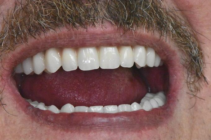 Dantų atstatymas implantais prieš ir po 16 2