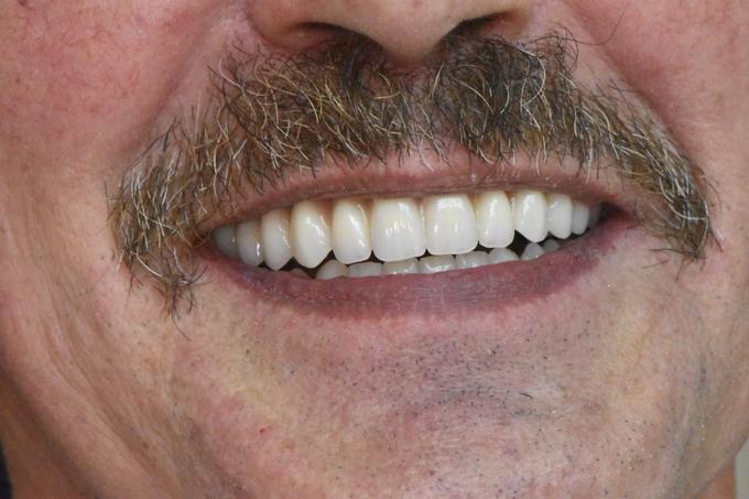 Dantų atstatymas implantais prieš ir po 16 4
