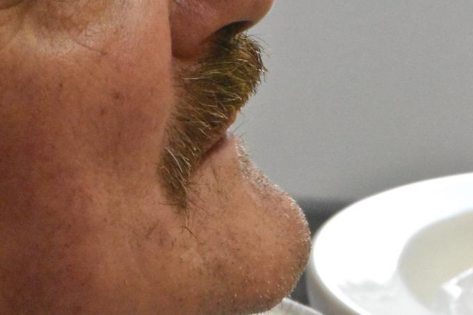 Dantų atstatymas implantais prieš ir po 16 5