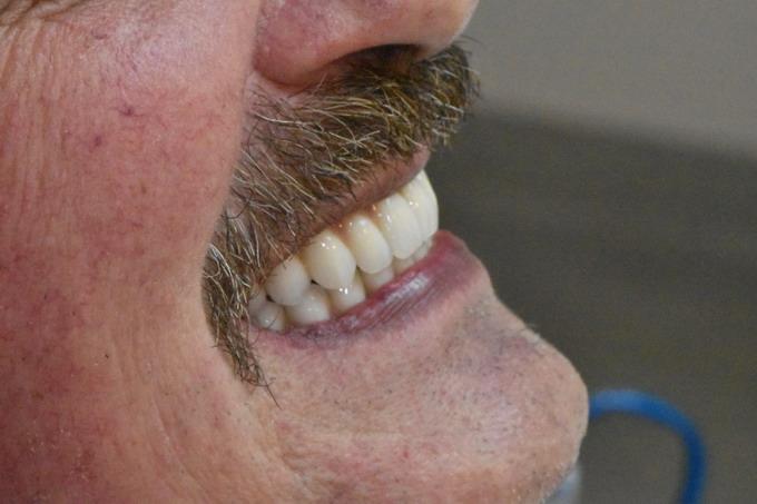 Dantų atstatymas implantais prieš ir po 16 6